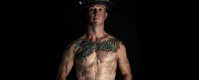 Devin Barnhart burn survivor, firefighter, SOTF, task force leader featured image