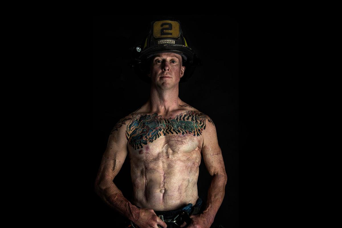 Devin Barnhart burn survivor, firefighter, SOTF, task force leader featured image