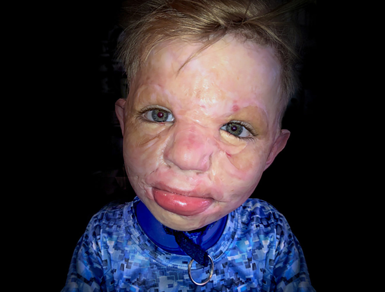 pediatric burn survivor Ronald Weaver